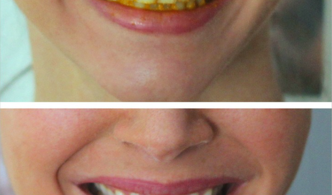 Tandblekning med gurkmeja