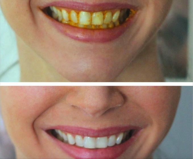 aktivt kol tänder