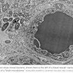 Hjärnmikrobiomet – Bor det tarmbakterier i hjärnan?