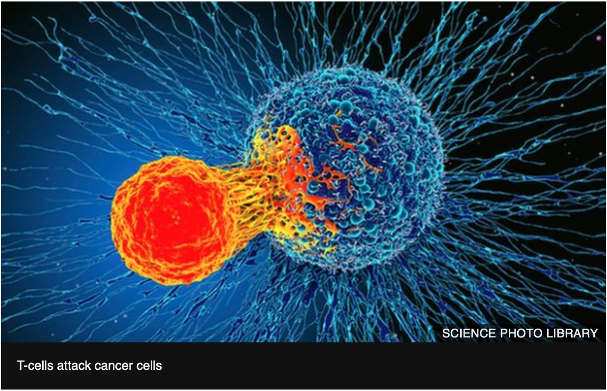 T-cell cancer